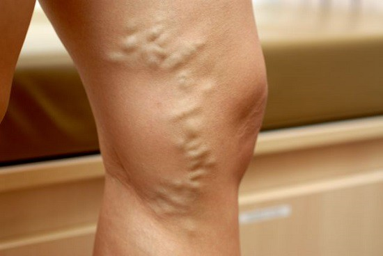 Варикозне розширення вен: діагностика та лікування