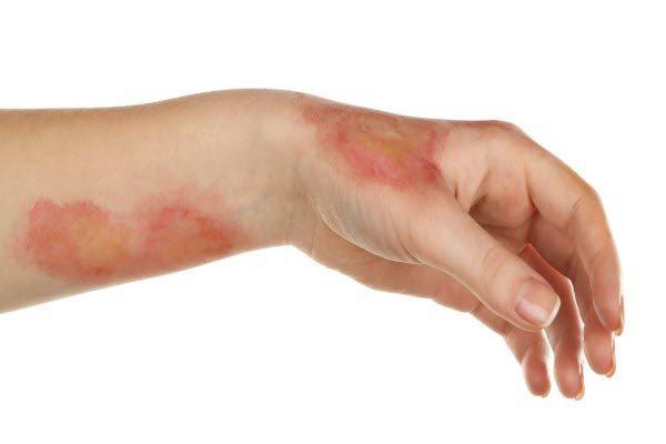 Опіки: чим небезпечні, де лікувати
