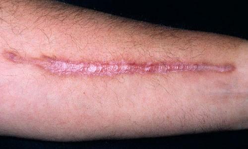 Рубці: види і способи лікування