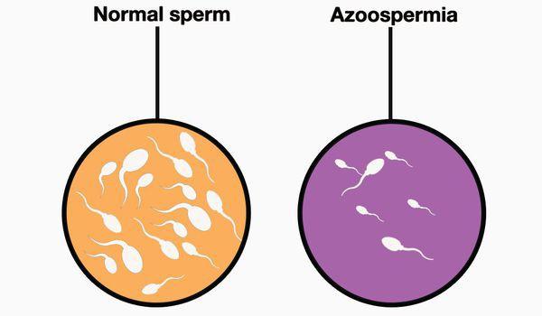 Що таке азооспермія (ІКСІ)