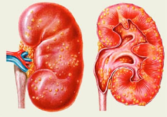 Хронічний пієлонефрит
