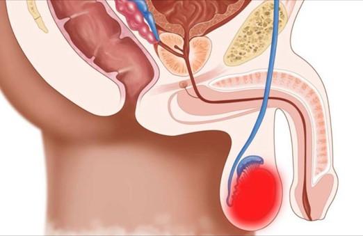 Рак яєчка. Діагностика та лікування