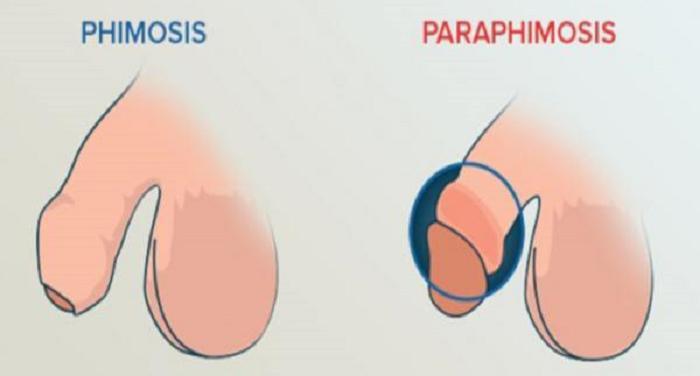 Защемлення головки крайньою плоттю (paraphymosis)