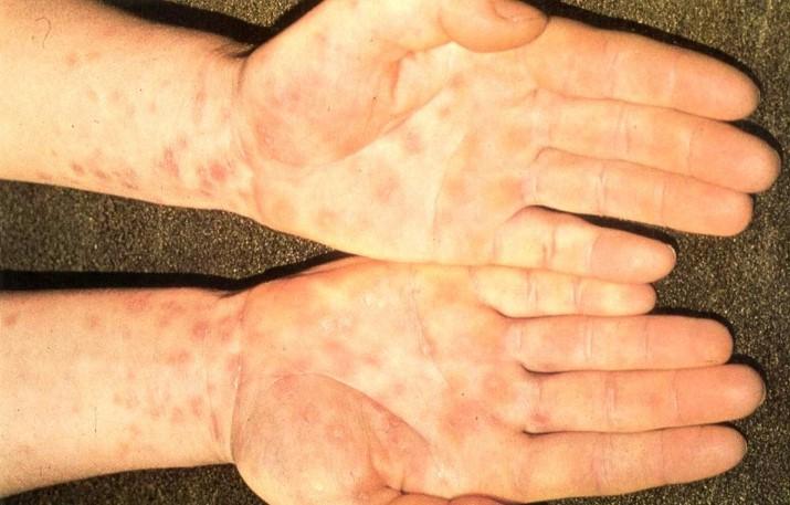 Урогенітальна хламідійна інфекція