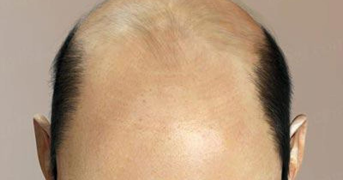 Відновлення волосся у чоловіків