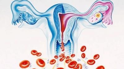 Дисфункціональні маткові кровотечі