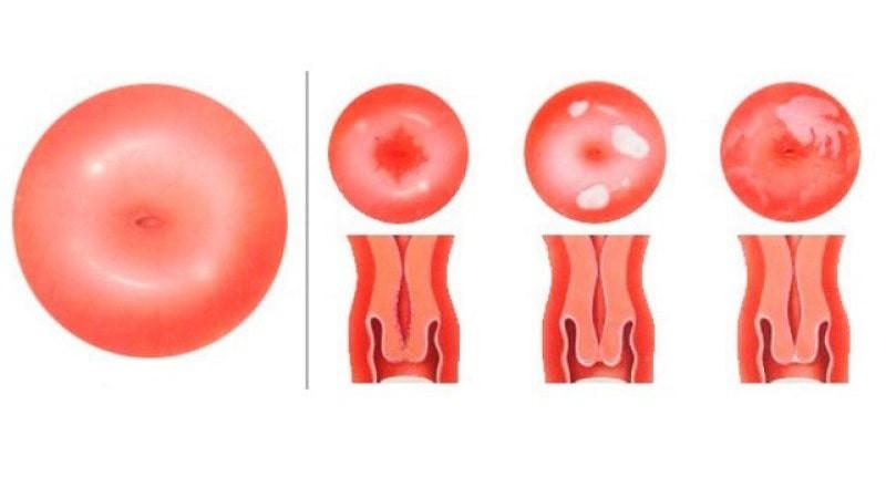 Ектропіон шийки матки: причини, симптоми, діагностика