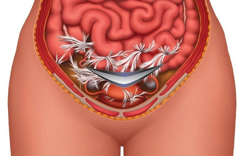 Що таке ендометріоз? Причини, діагностика і лікування