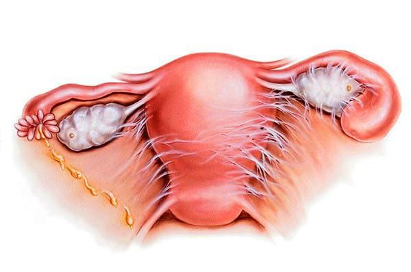 Ендометрит (запалення порожнини матки)