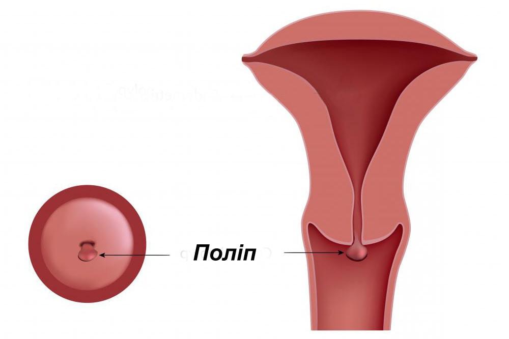 Поліп шийки матки. Діагностика та видалення