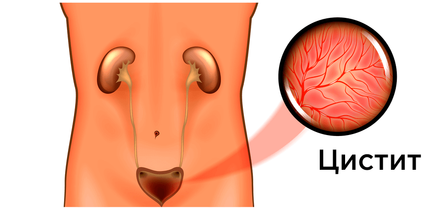 Цистит (запалення сечового міхура)